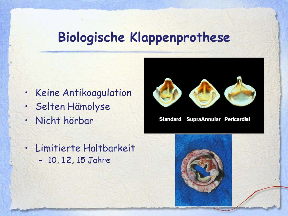 Biologische Klappenprothese