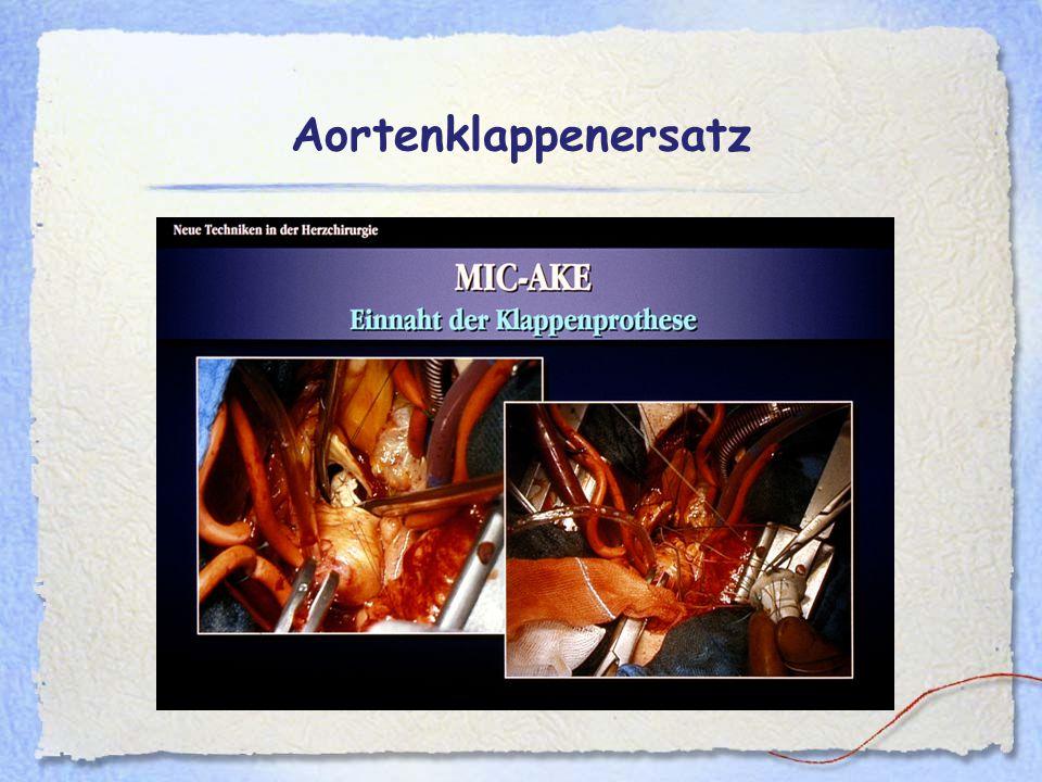 Aortenklappenersatz