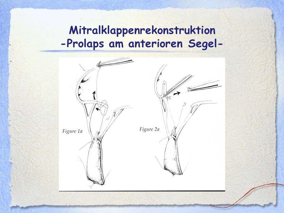 Mitralklappenrekonstruktion -Prolaps am anterioren Segel-
