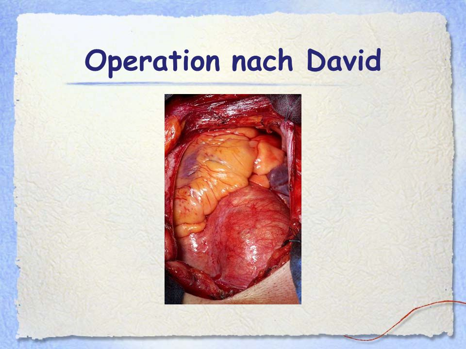 Zellulitis nach vaginaler Operation