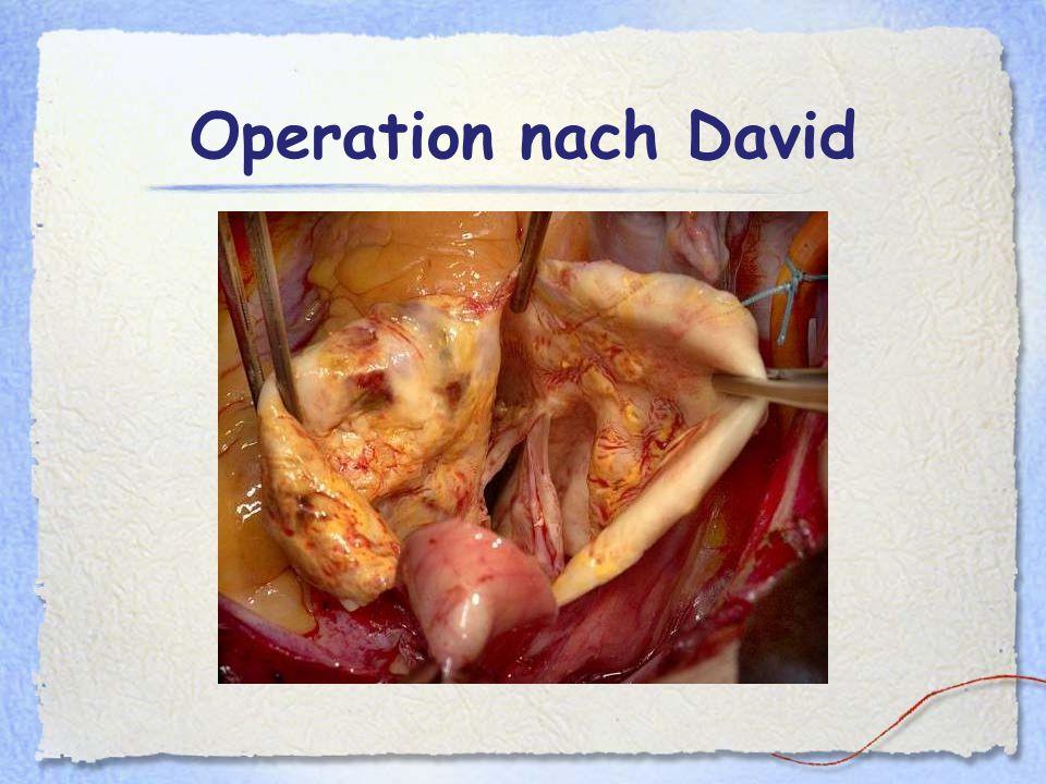Operation nach David