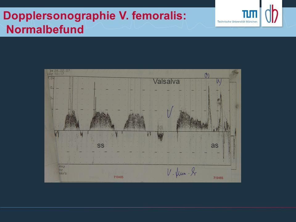 Dopplersonographie V. femoralis: Normalbefund