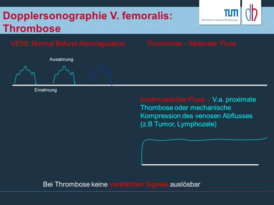 Dopplersonographie V. femoralis: