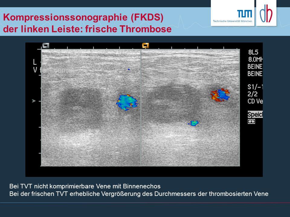 Kompressionssonographie (FKDS) der linken Leiste: frische Thrombose