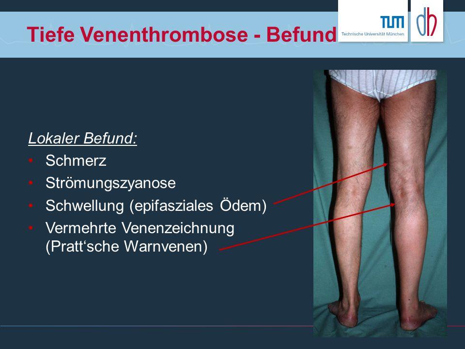 Tiefe Venenthrombose - Befund