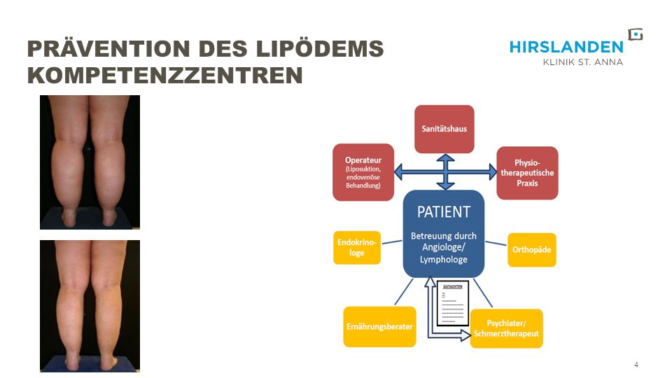Prävention des Lipödems Kompetenzzentren