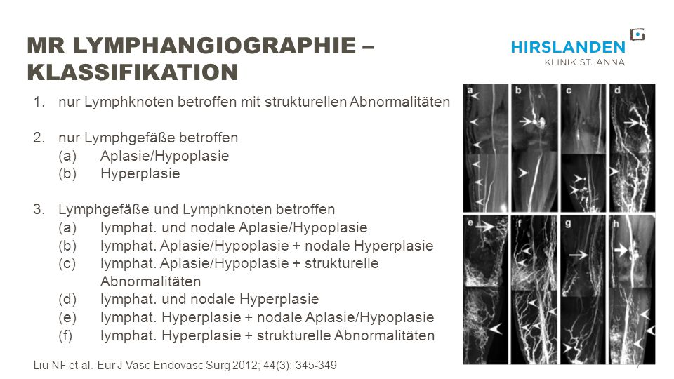 MR Lymphangiographie – Klassifikation