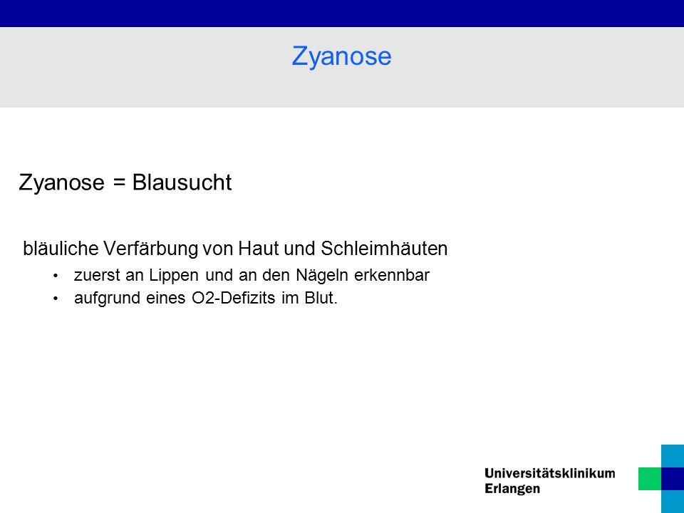 Zyanose Zyanose = Blausucht