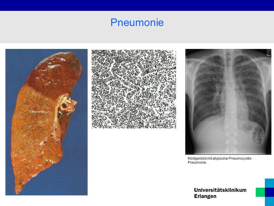 Pneumonie Röntgenbild mit atypischer Pneumocystis-Pneumonie