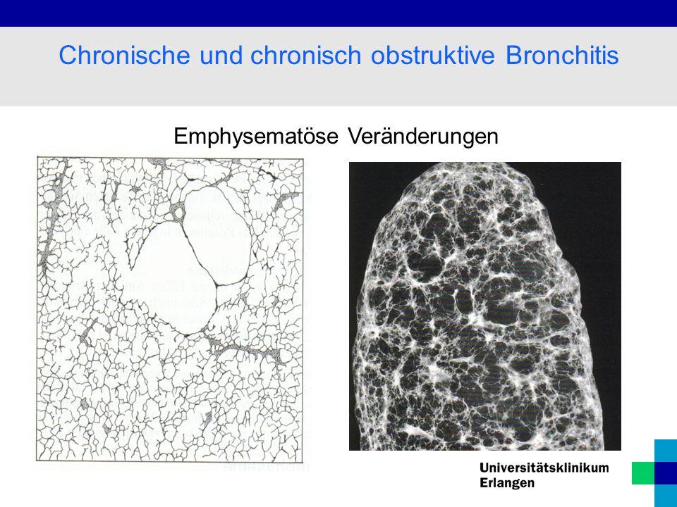 Chronische und chronisch obstruktive Bronchitis