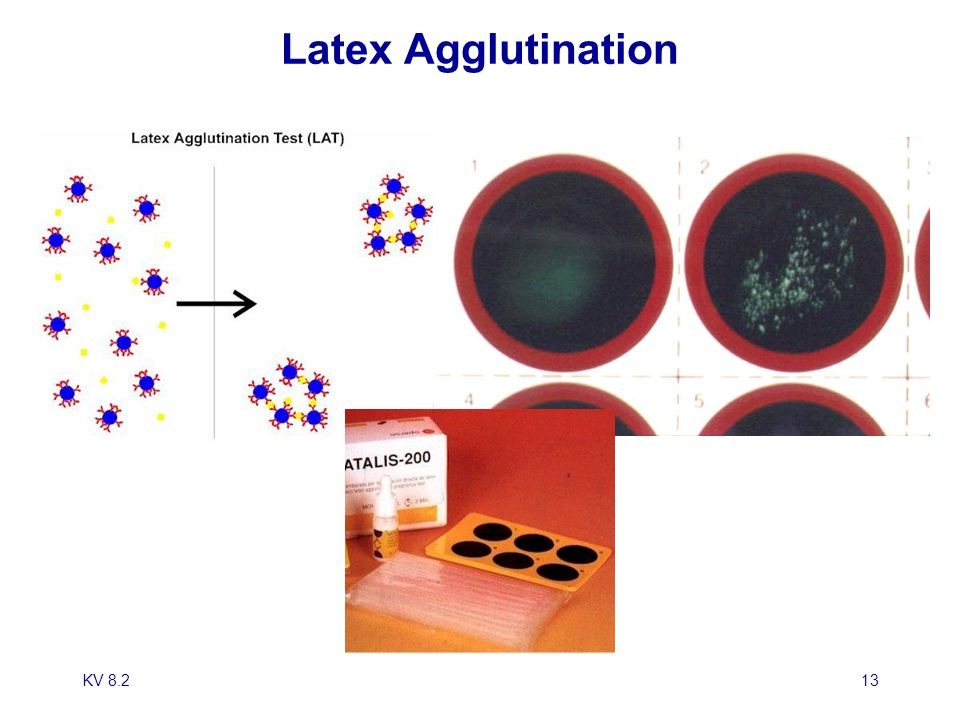 Latex Agglutination KV 8.2