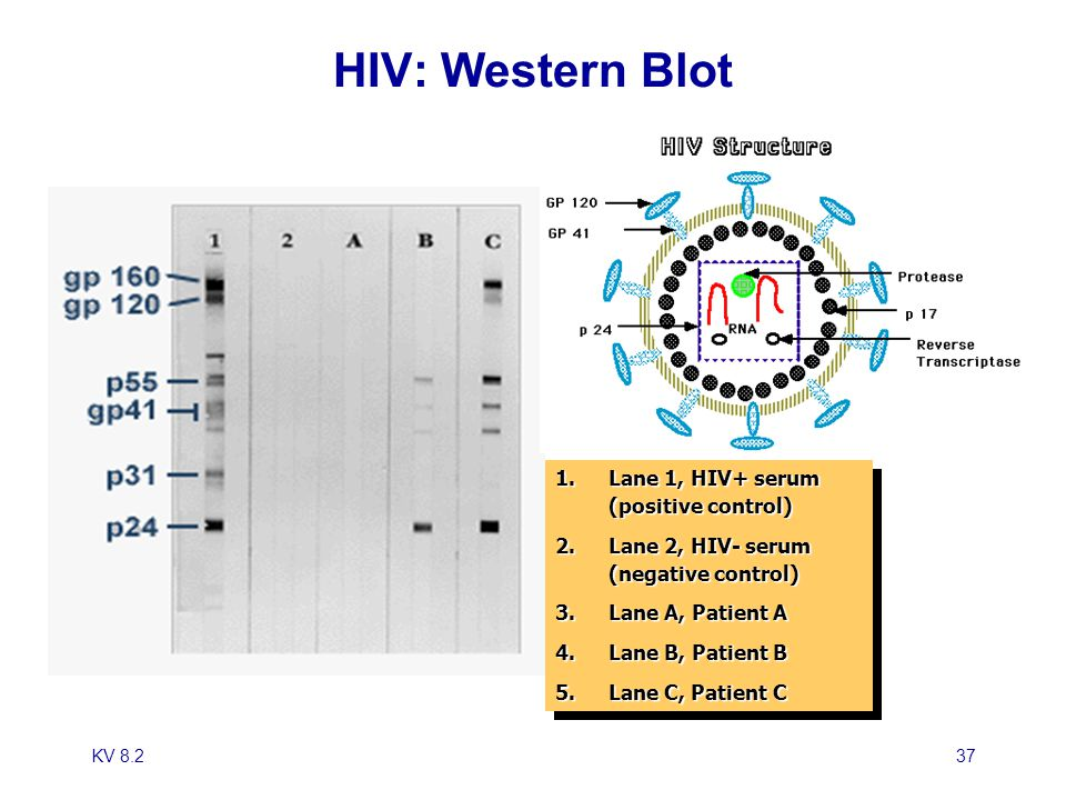 HIV: Western Blot Lane 1, HIV+ serum (positive control)
