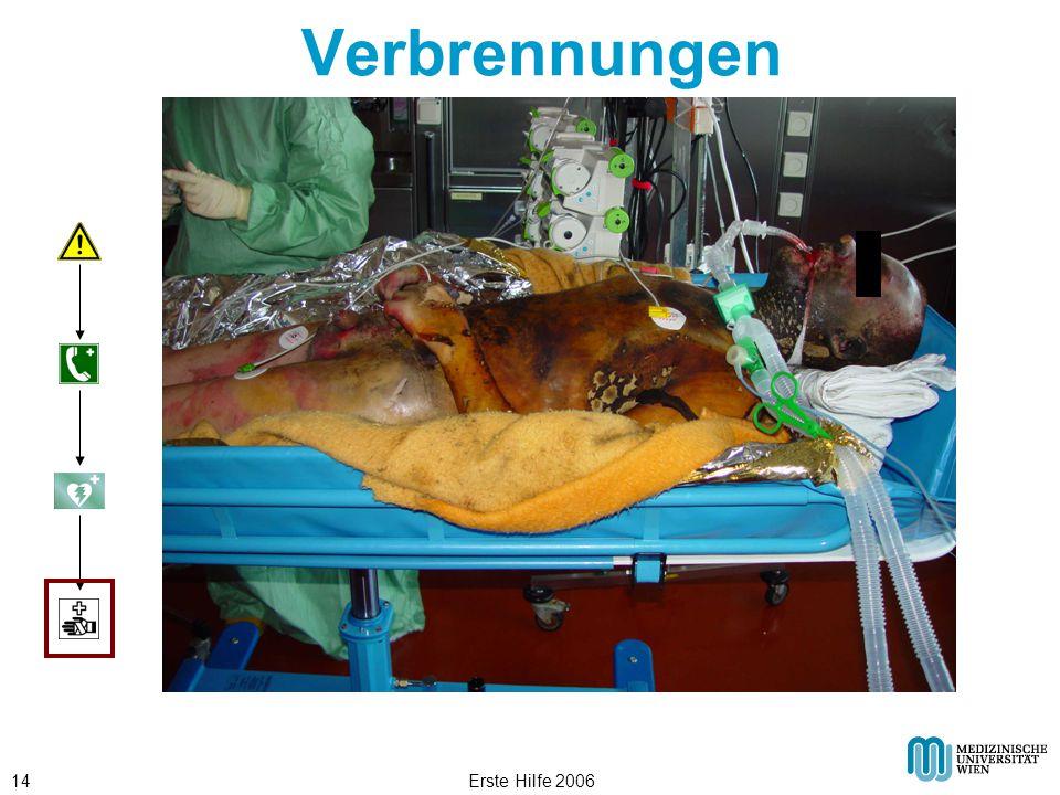 Verbrennungen Erste Hilfe 2006