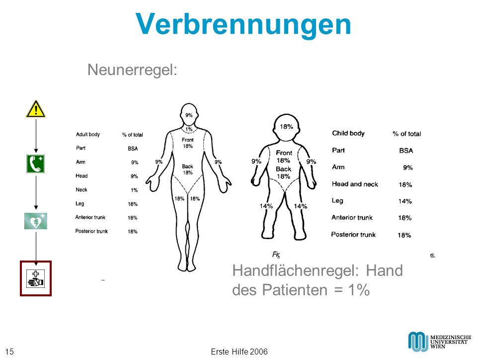 Verbrennungen Neunerregel: Handflächenregel: Hand des Patienten = 1%