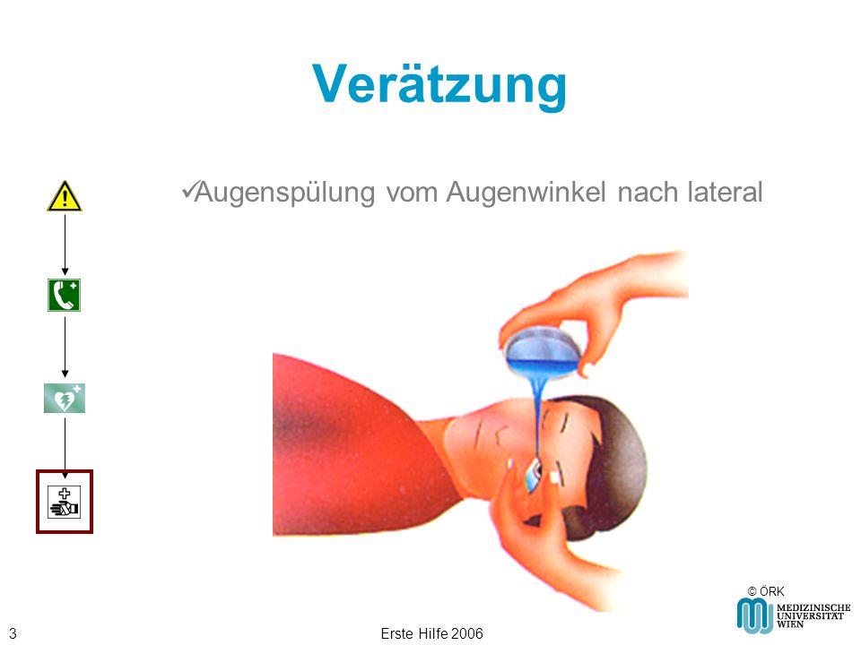Verätzung Augenspülung vom Augenwinkel nach lateral Erste Hilfe 2006