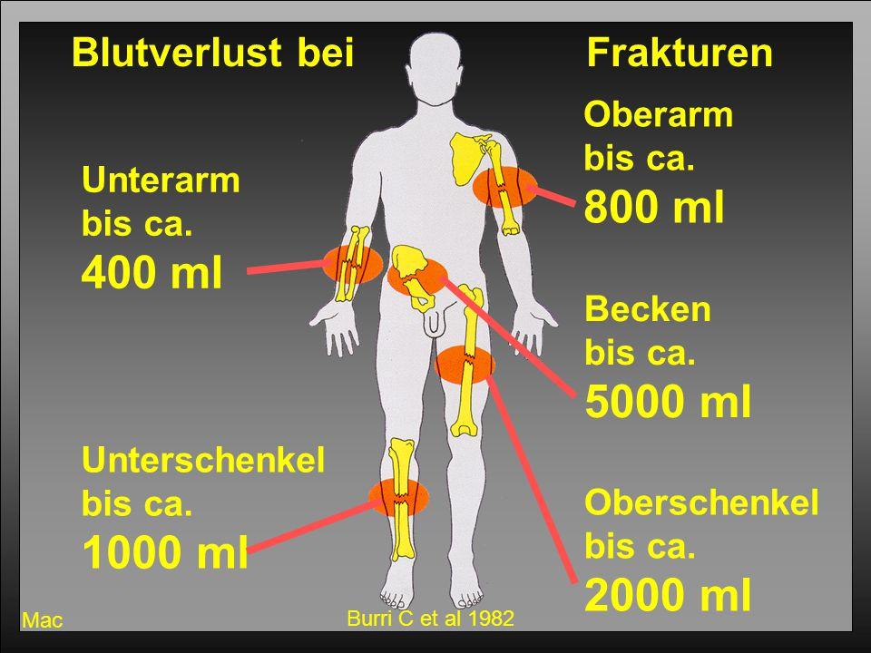 800 ml 400 ml 5000 ml 1000 ml 2000 ml Blutverlust bei Frakturen