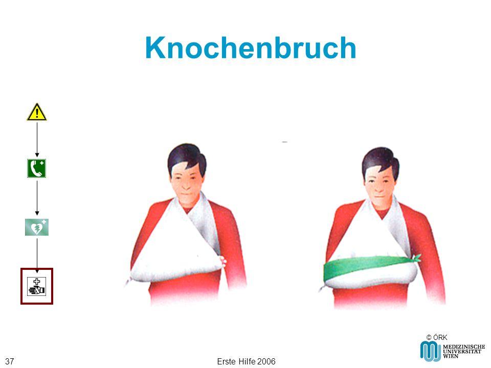 Knochenbruch © ÖRK Erste Hilfe 2006