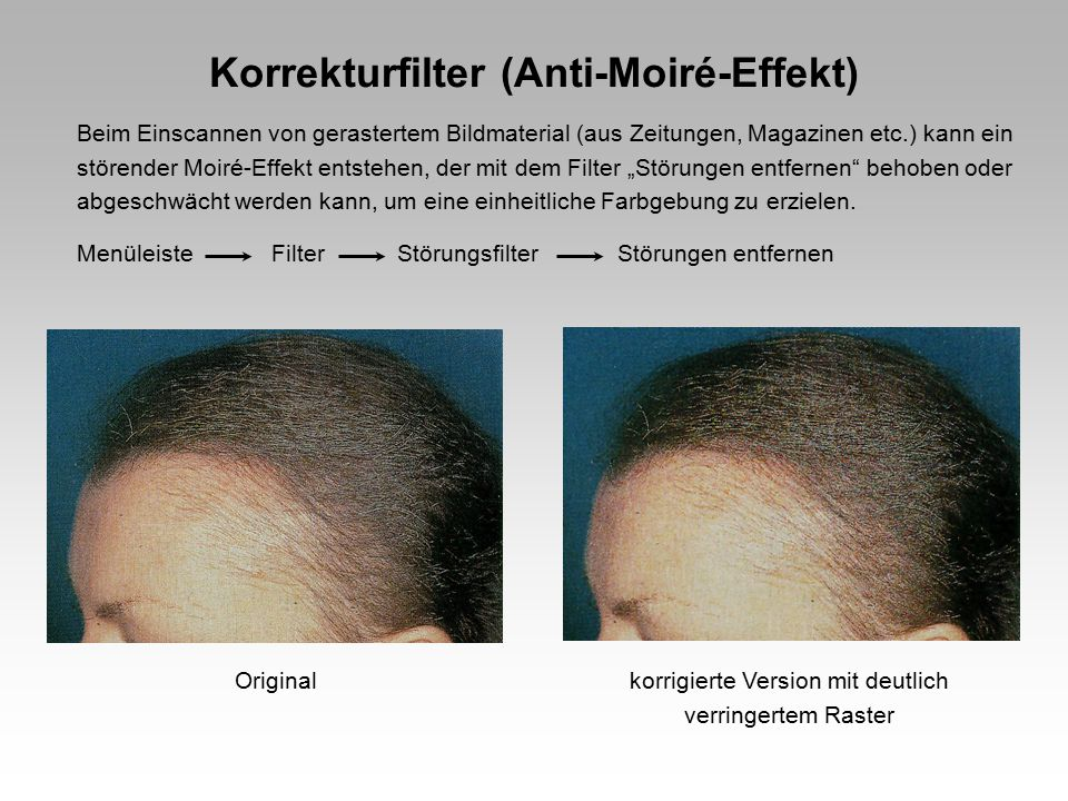 Korrekturfilter (Anti-Moiré-Effekt)