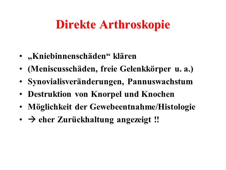 """Direkte Arthroskopie """"Kniebinnenschäden klären"""