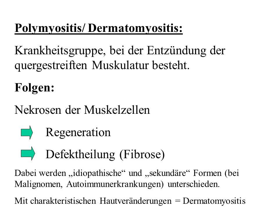 Polymyositis/ Dermatomyositis: