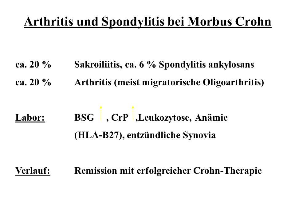 Arthritis und Spondylitis bei Morbus Crohn