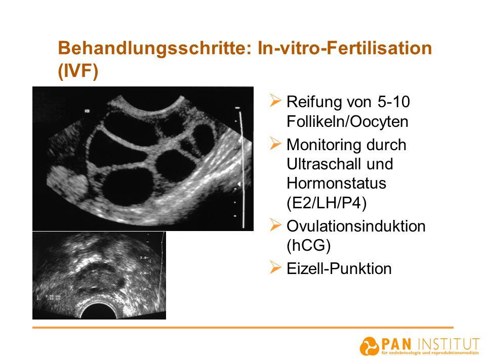Behandlungsschritte: In-vitro-Fertilisation (IVF)