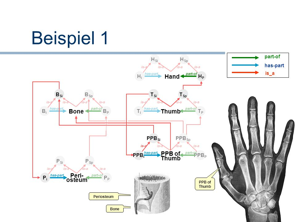 Beispiel 1 Hand Thumb Bone PPB of Thumb Peri- osteum Hand Bone Thumb