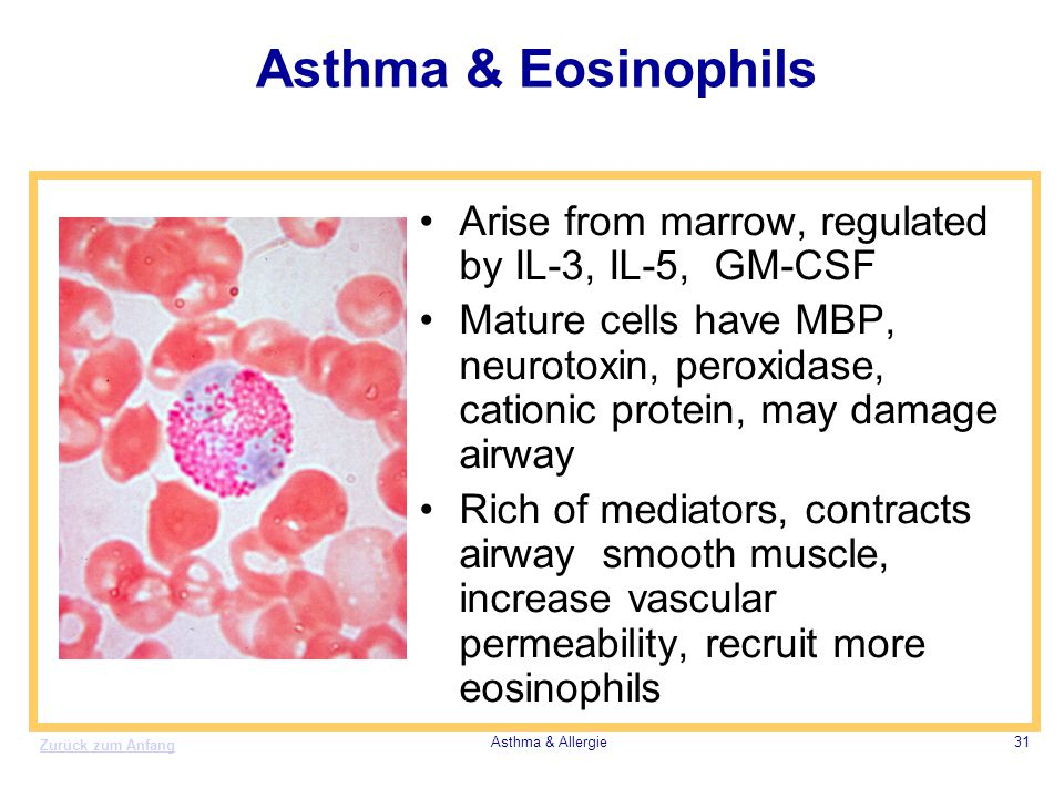 Asthma & Eosinophils Arise from marrow, regulated by IL-3, IL-5, GM-CSF.