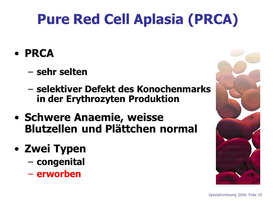 Pure Red Cell Aplasia (PRCA)