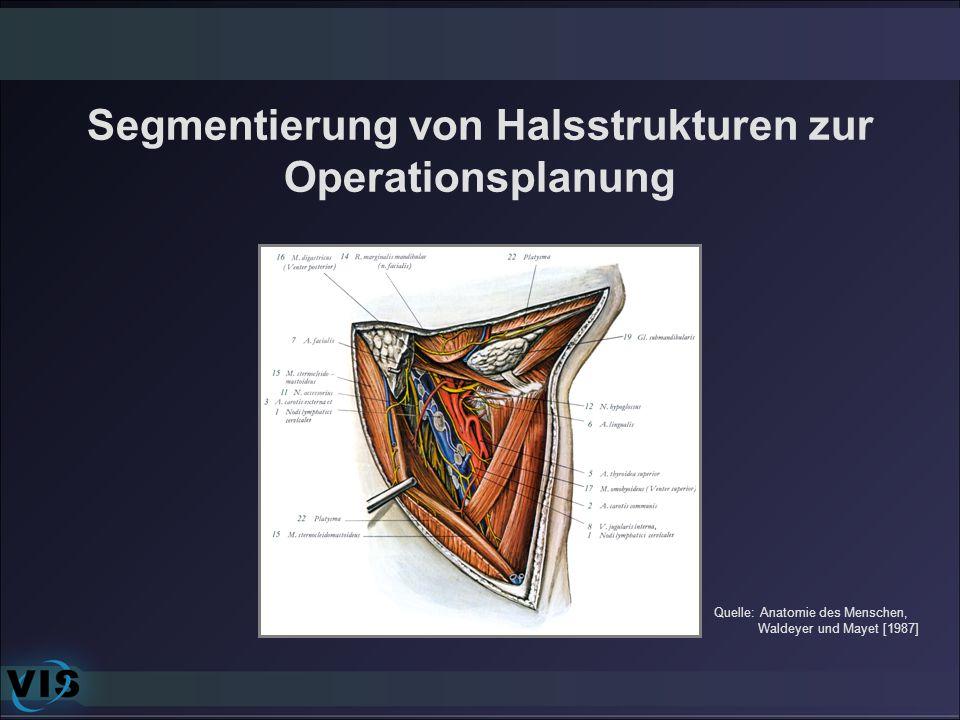 Segmentierung von Halsstrukturen zur Operationsplanung