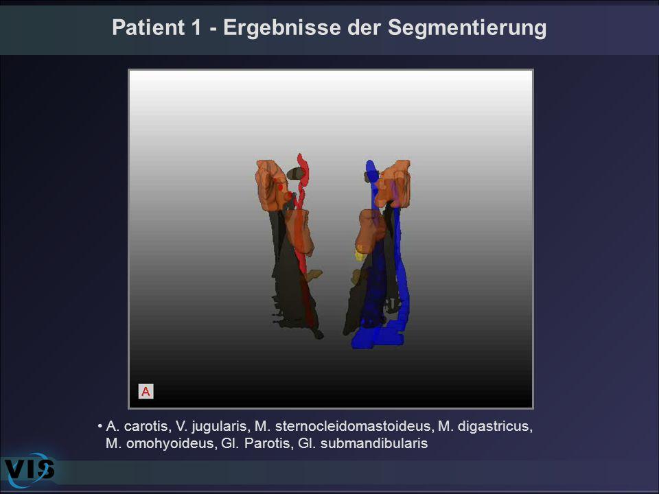 Patient 1 - Ergebnisse der Segmentierung