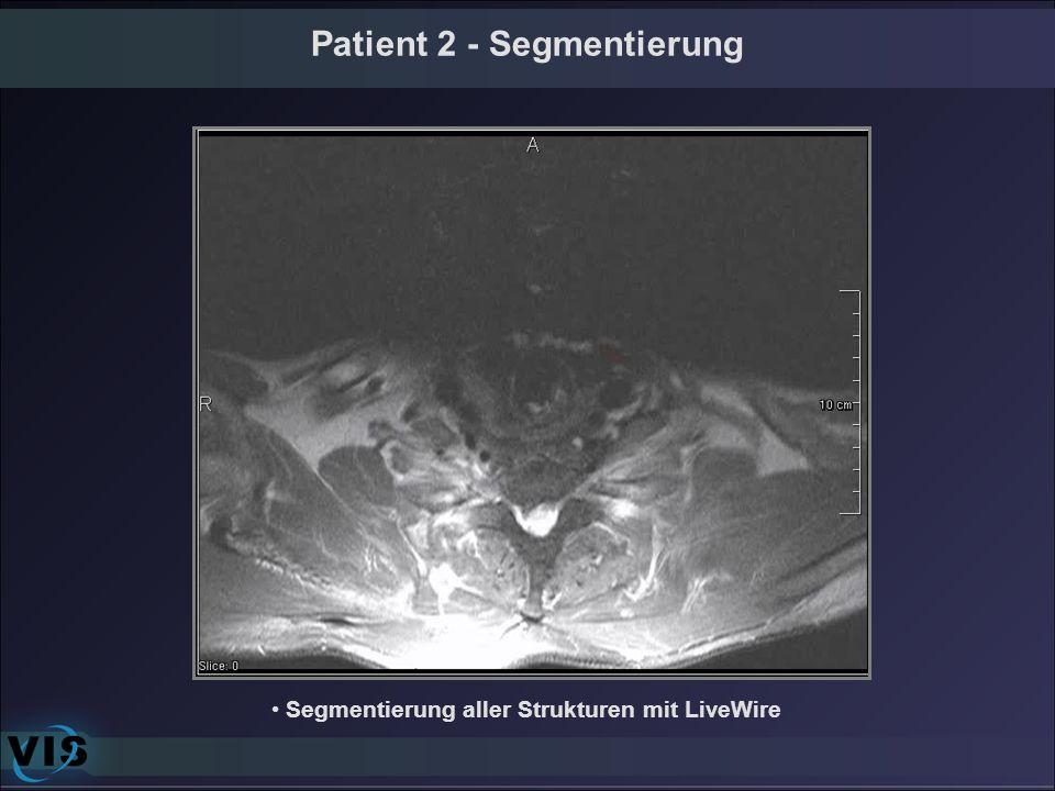 Patient 2 - Segmentierung