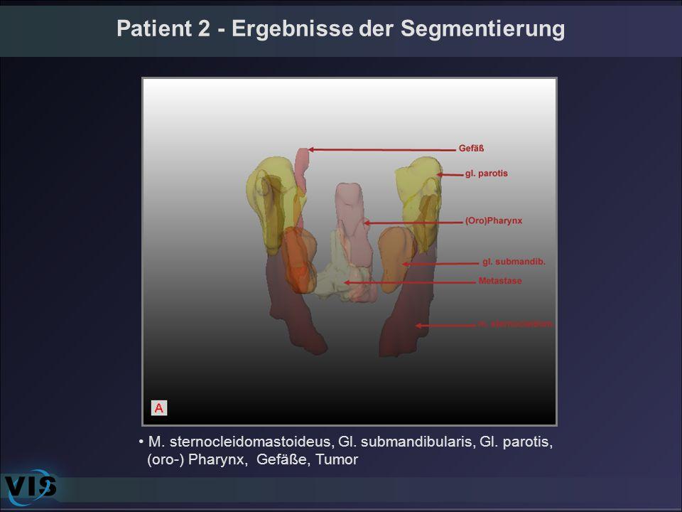 Patient 2 - Ergebnisse der Segmentierung