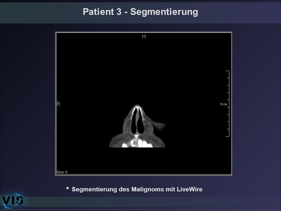 Patient 3 - Segmentierung