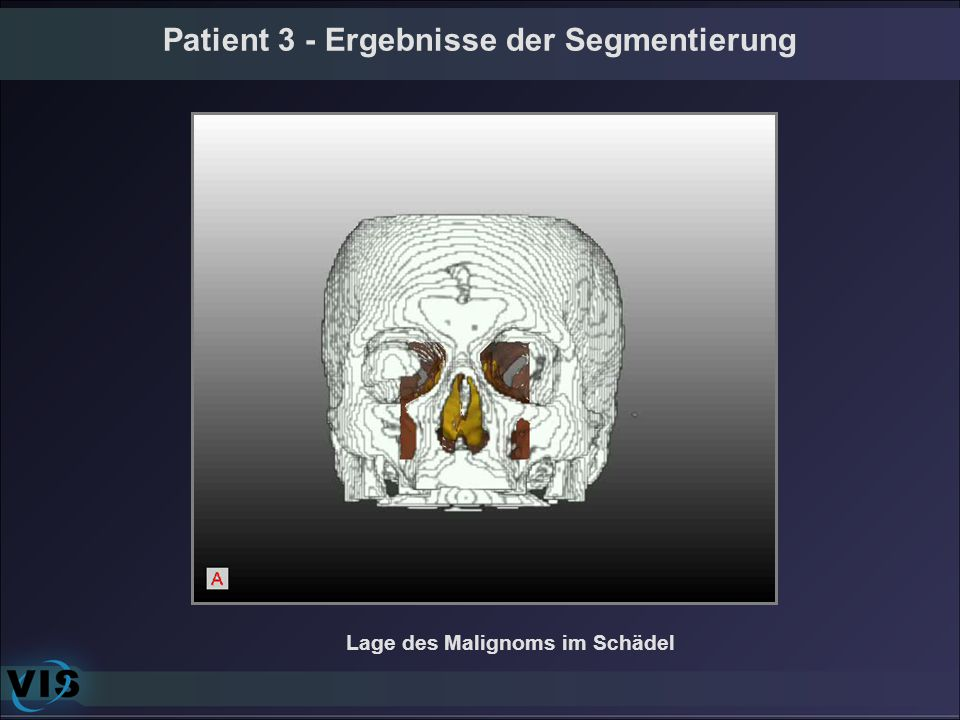 Patient 3 - Ergebnisse der Segmentierung