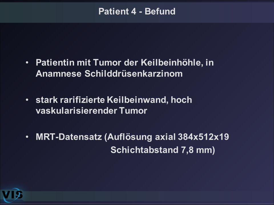 Patient 4 - Befund Patientin mit Tumor der Keilbeinhöhle, in Anamnese Schilddrüsenkarzinom.