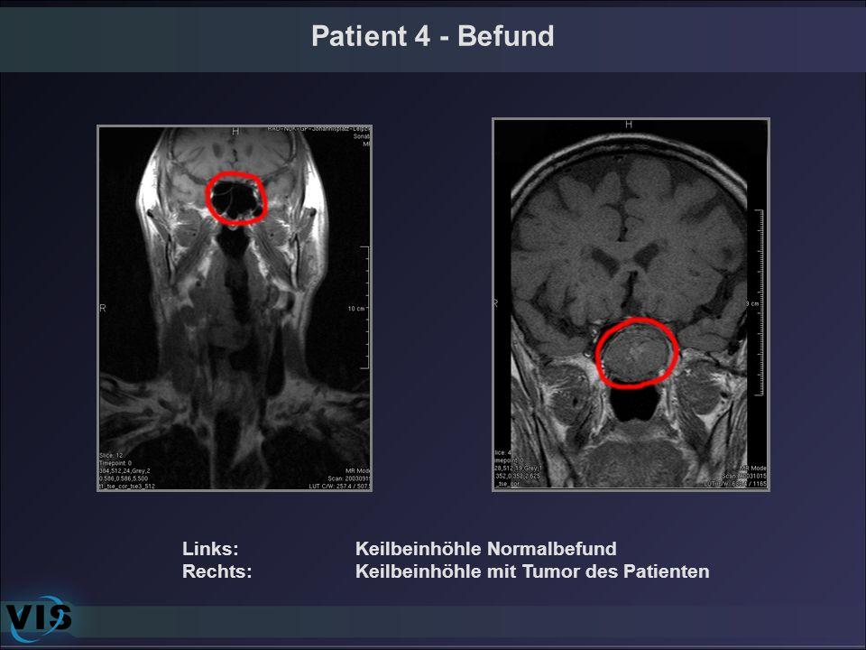 Patient 4 - Befund Links: Keilbeinhöhle Normalbefund