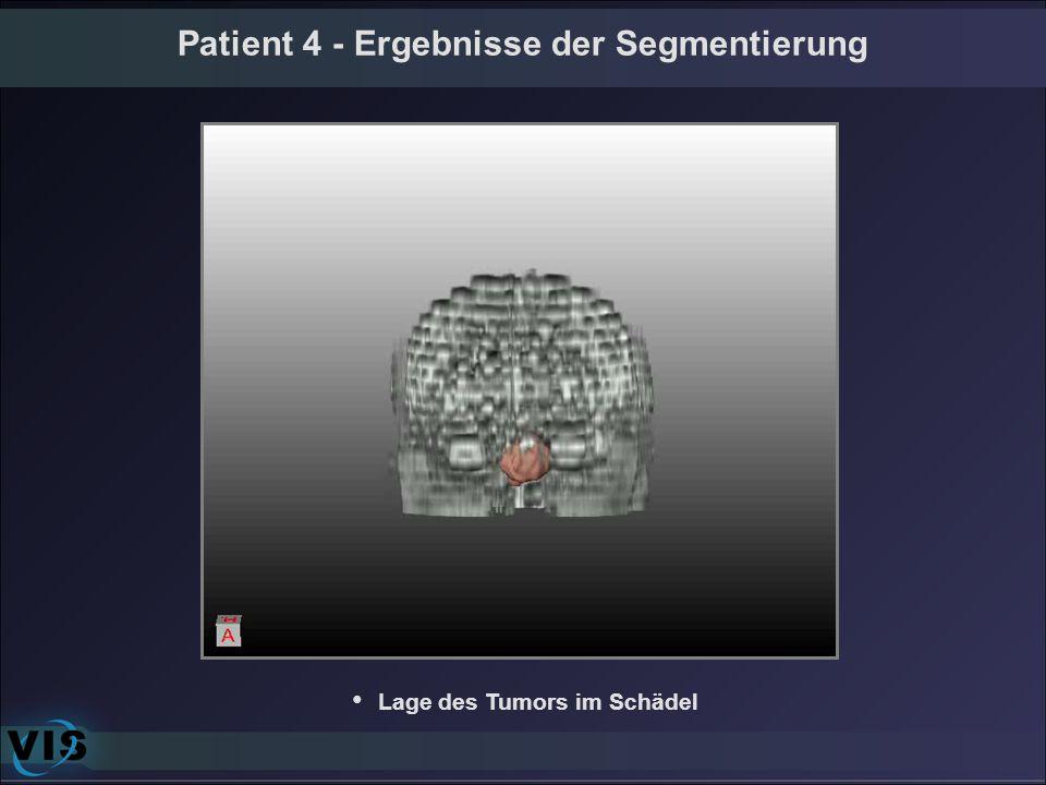 Patient 4 - Ergebnisse der Segmentierung