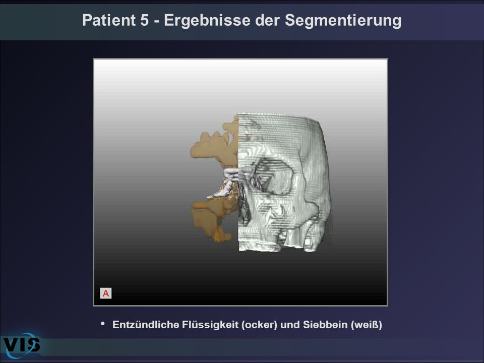 Patient 5 - Ergebnisse der Segmentierung