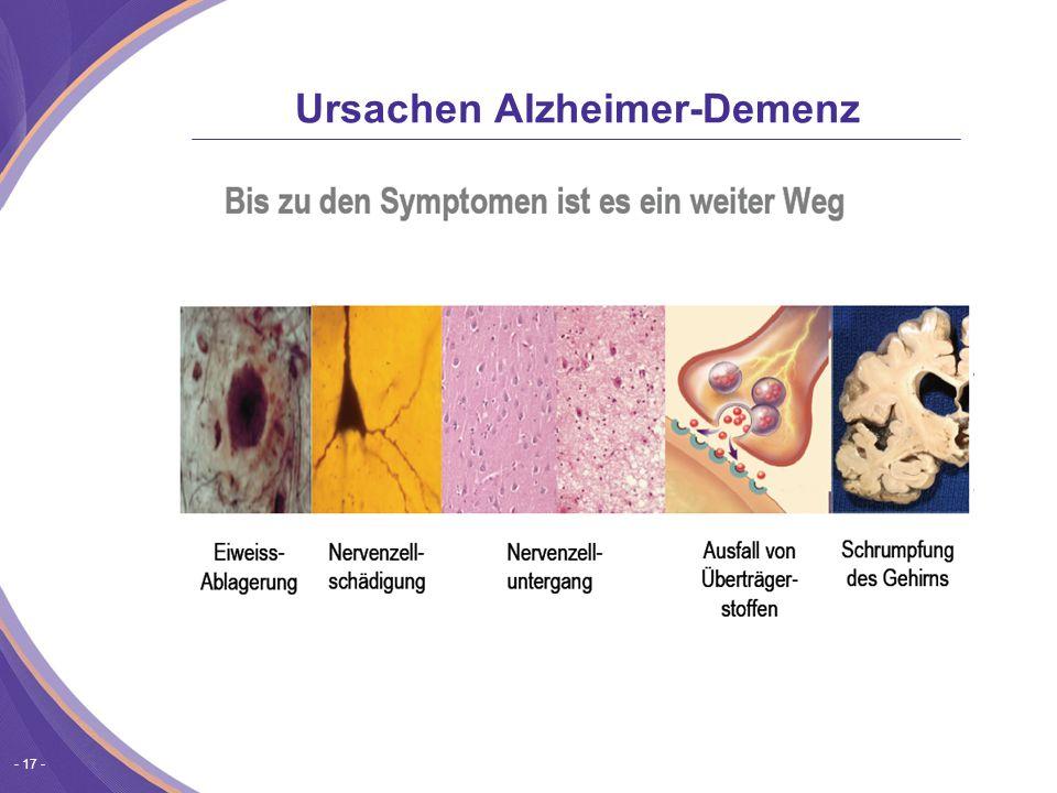 Ursachen Alzheimer-Demenz