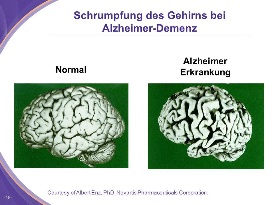 Schrumpfung des Gehirns bei Alzheimer-Demenz