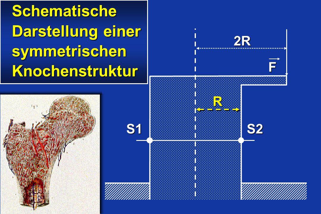 Schematische Darstellung einer symmetrischen Knochenstruktur 2R F S1