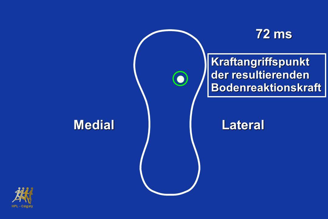 72 ms Medial Lateral Kraftangriffspunkt der resultierenden
