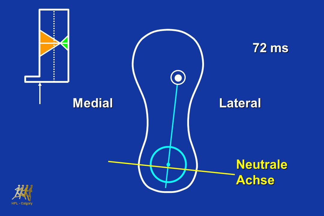 72 ms Medial Lateral Neutrale Achse