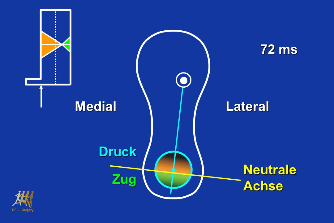 72 ms Medial Lateral Druck Neutrale Achse Zug