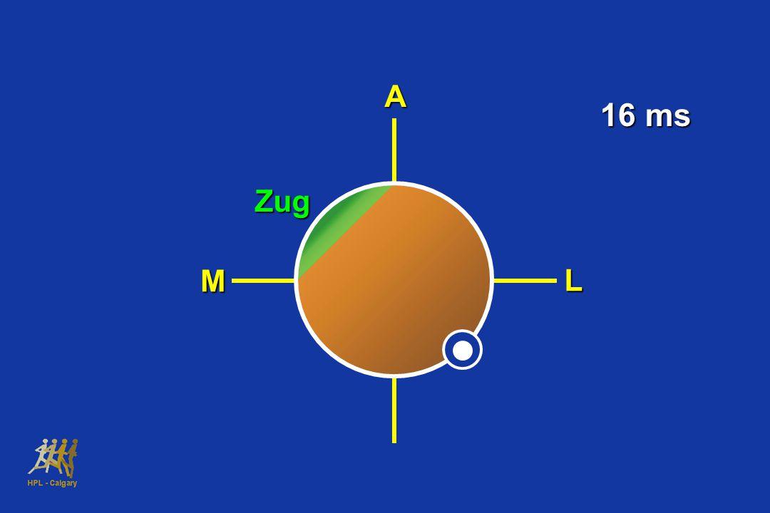 A 16 ms Zug M L