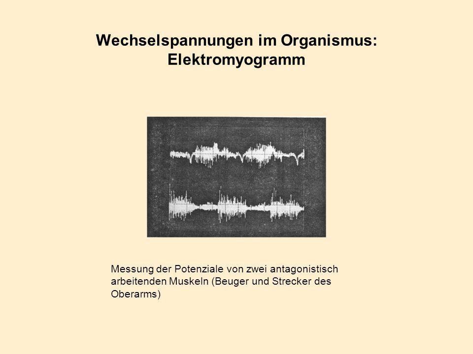 Wechselspannungen im Organismus: Elektromyogramm