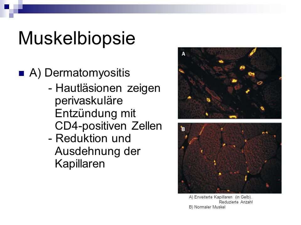 Muskelbiopsie A) Dermatomyositis