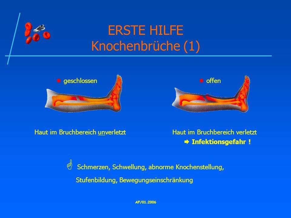 ERSTE HILFE Knochenbrüche (1)