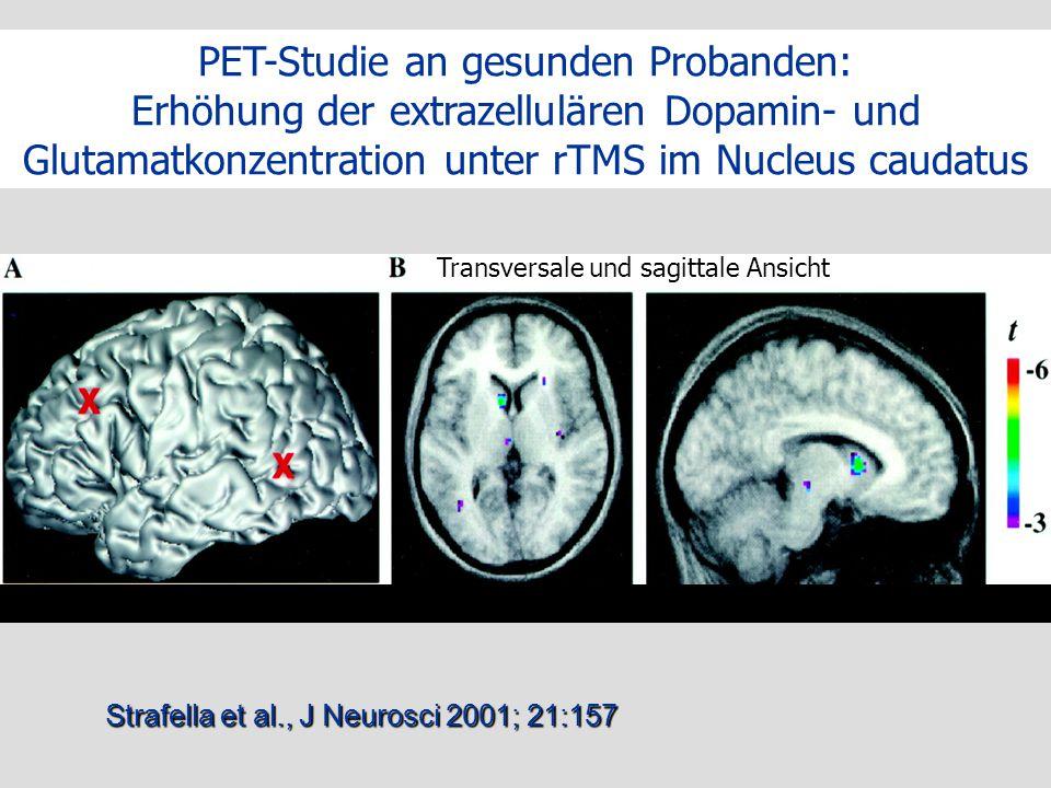 PET-Studie an gesunden Probanden: